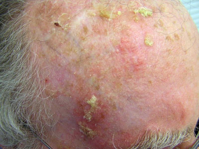 Actinic keratosis Overview - Mayo Clinic